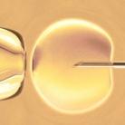 Alles over IVF