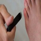 Moxatherapie tijdens stuitligging